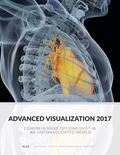 Advanced Visualization 2017: Comprehensive Options Exist in an Unconsolidated World